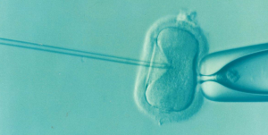 ivf procedure; blog: Average Cost of In Vitro Fertilization